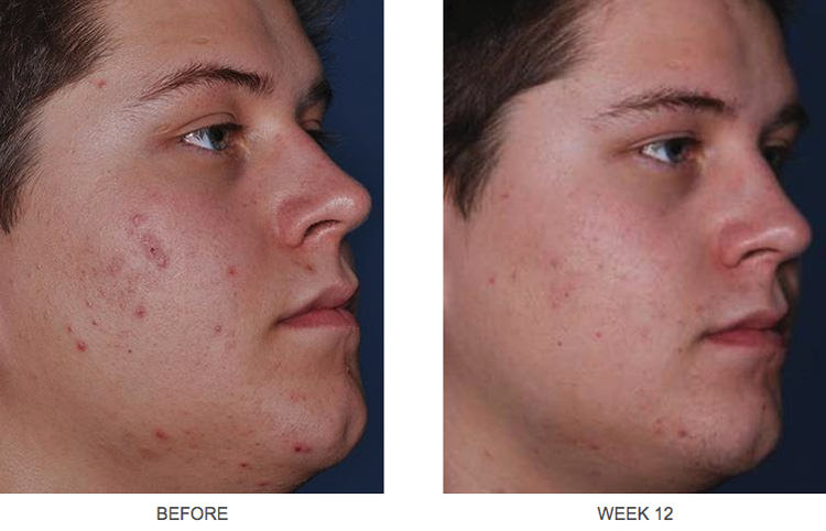 Obagi clenziderm MD before and after