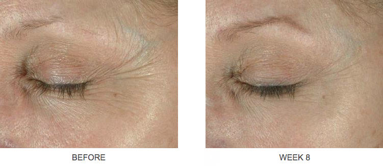 elastiderm eye cream before and after