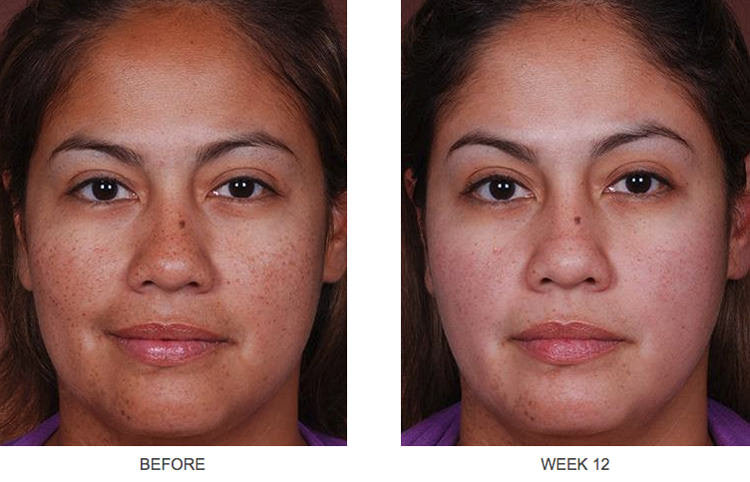 Obagi-C Rx before and after